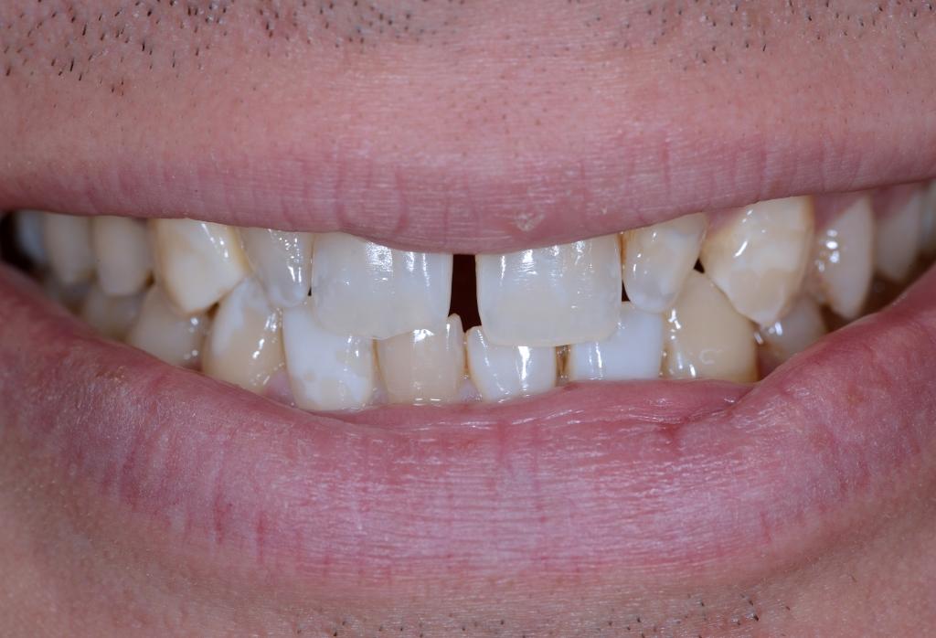 Estetica dentale caso clinico - Finestra tra i denti ...