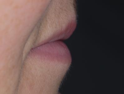 Profilo negativo per mancanza di supporto labiale in assenza denti
