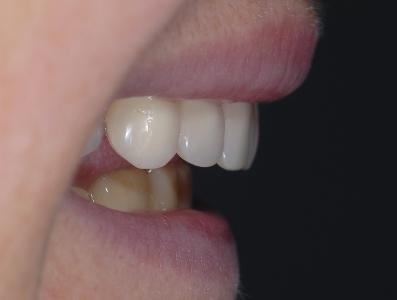 Profilo positivo supporto labiale dato dalla protesi in bocca