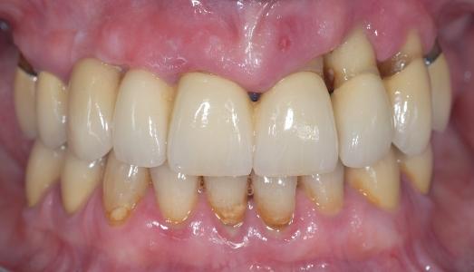 Situazione iniziale, elementi dentari che non possono più essere mantenuti in bocca (pre estrazioni)