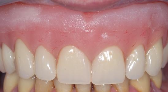 Situazione finale, protesi mobile immediata in bocca dopo l'estrazione di tutti i denti arcata superiore